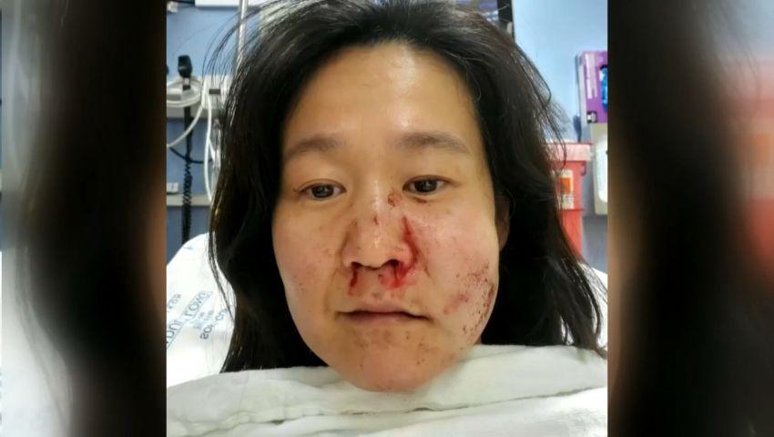 www.kiro7.com: Why anti-Asian hate crimes go unreported