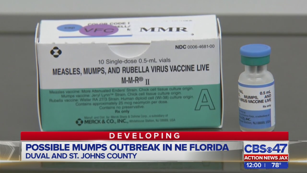 Cases Of Mumps Found In Jacksonville Area